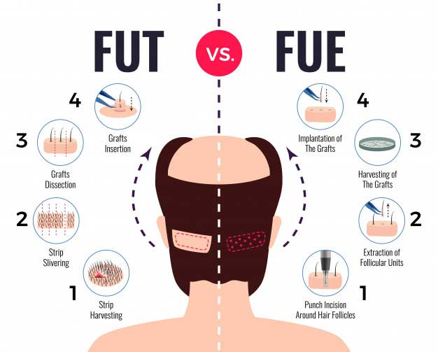 illustration showing the different between FUT and FUE