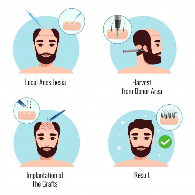 illustrations showing how hair transplant works
