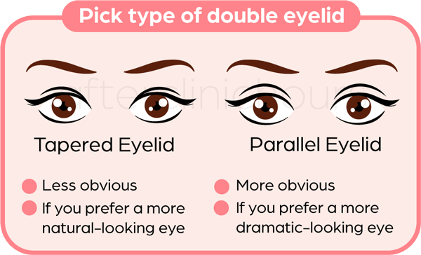 Different type of eyelid shapes that double eyelid surgery can achieve. A tapered eyelid or parallel eyelid