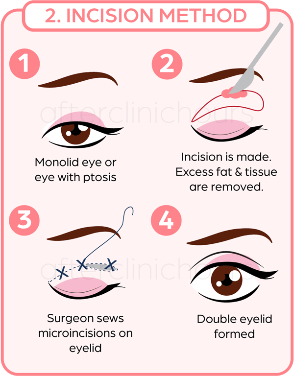 Double eyelid surgery steps using incision or cutting method