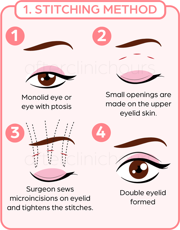 Double eyelid surgery using stitching method