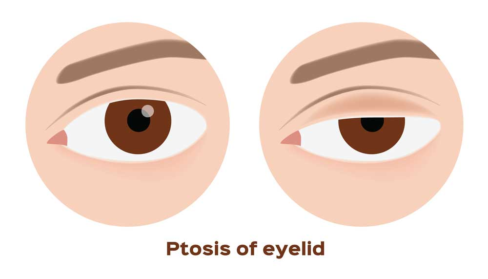 picture showing ptosis, which is a condition where our eyelid muscles gets weaker, thus making it harder to open our eyes.