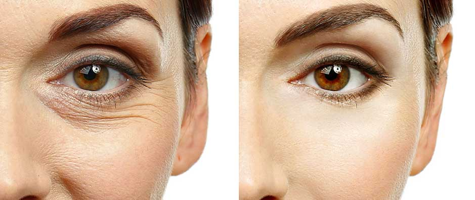 picture showing that crow's feet and eye wrinkles makes you looks older