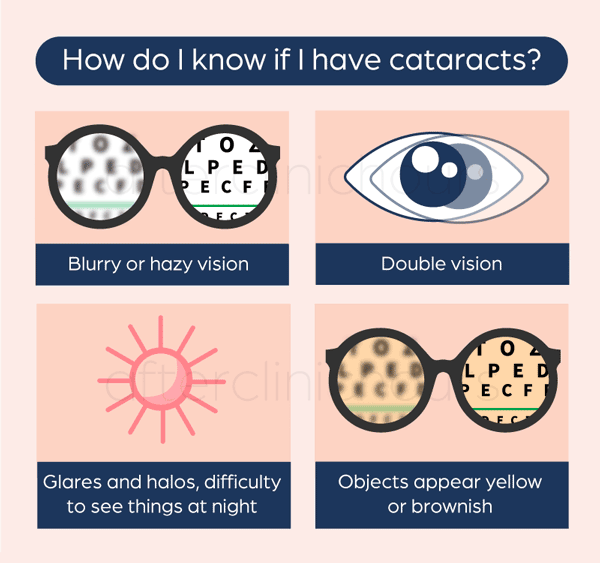 Symptoms of cataract includes blurry or hazy vision, double vision, glares and halo, object appear yellowish