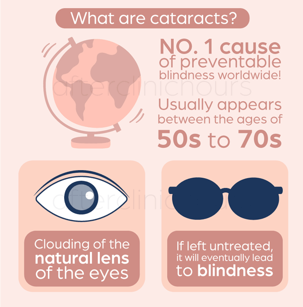 cataracts are the clouding of natural lens of the eyes, most of the time due to aging