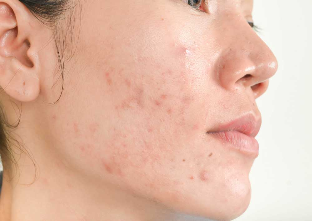 woman with acne skin condition