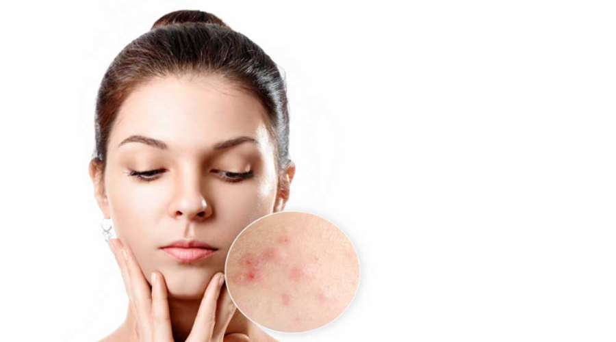 5 signs that tell you that it's time to see a dermatologist for your acne