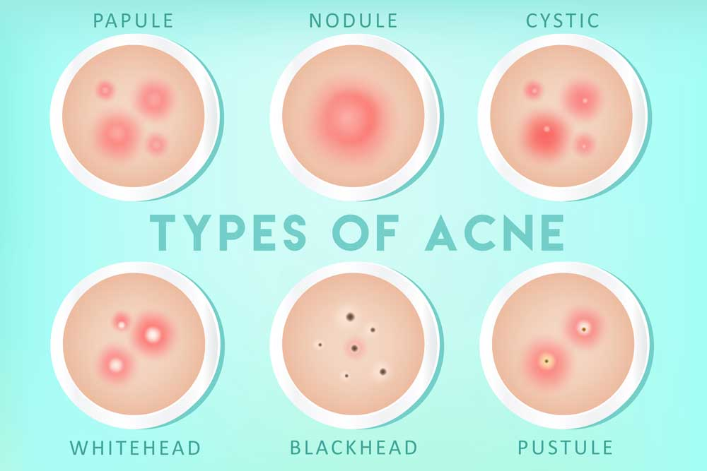 illustrations showing 6 different types of acne