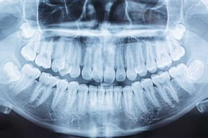 x ray vision of a mouth showing buried wisdom tooth