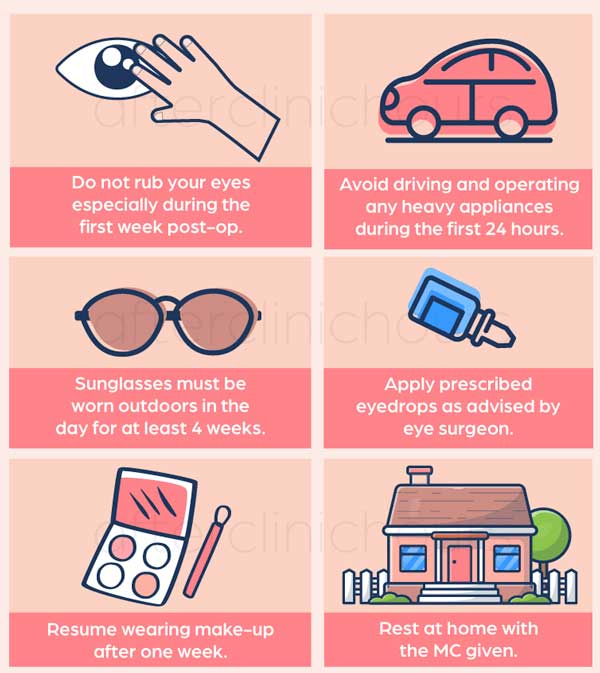 Some of the things to take note after your LASIK surgery