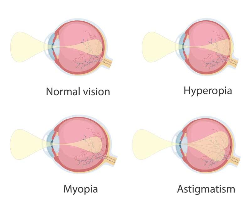 Comparison of how the normal eye sees with eyes with refractive errors